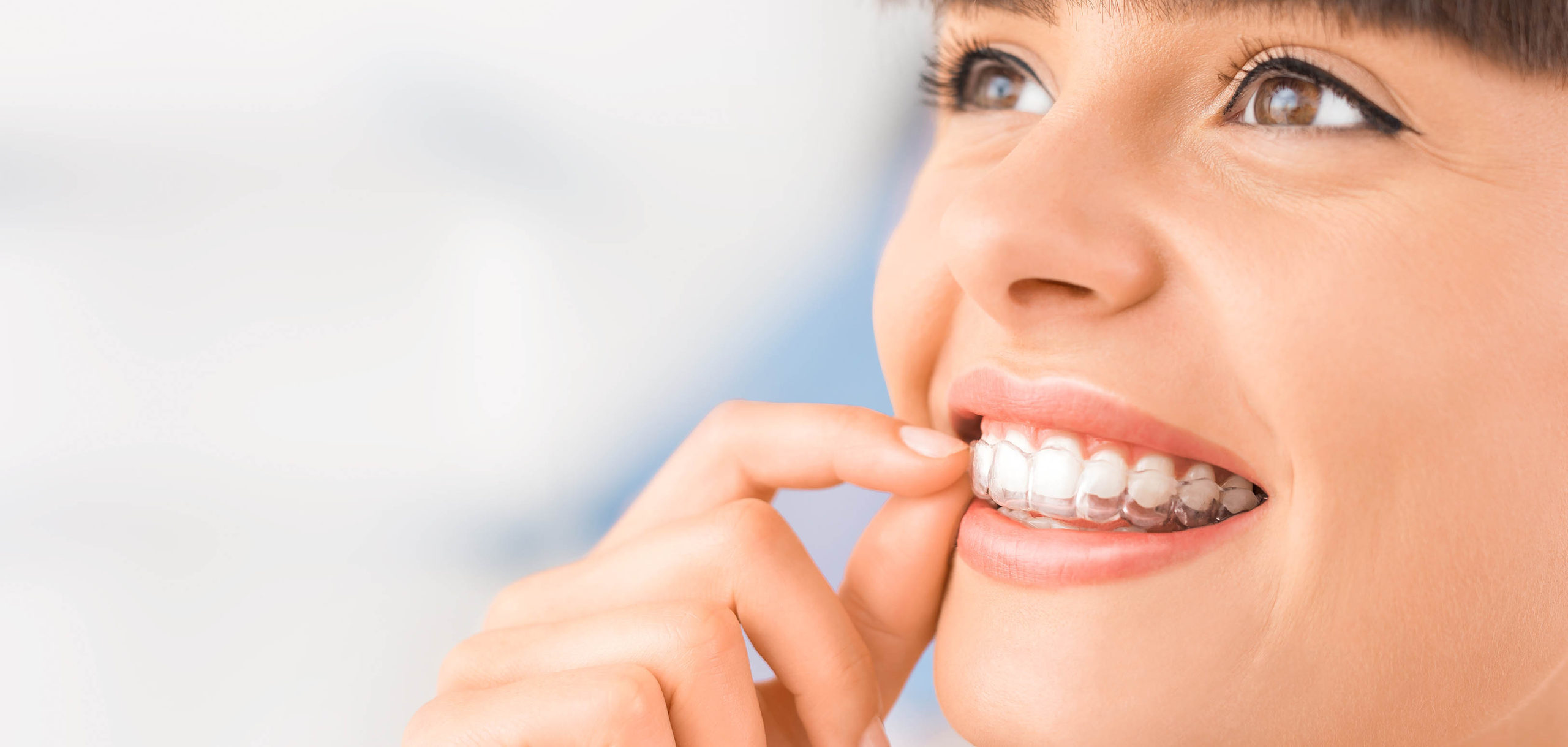 Invisalign - Studio Dentistico Lucaferri