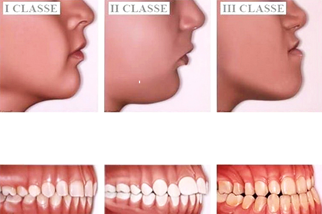 Studio dentistico Lucaferri - Casi di malocclusione