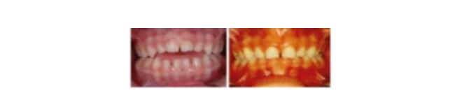 Studio dentistico Lucaferri - Malocclusione