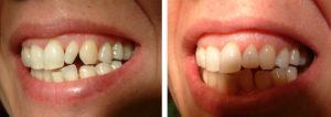 Studio Dentistico Lucaferri - Cosmesi dentale