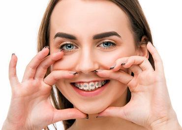 Il trattamento ortodontico negli adolescenti