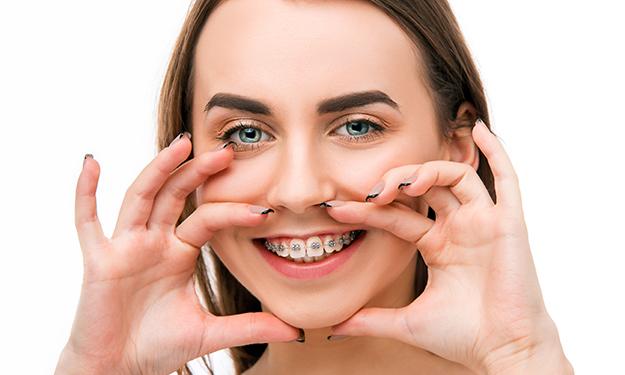 Studio Dentistico Lucaferri - Apperecchio ortodontico adolescenti