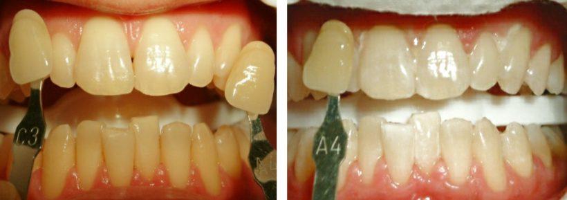 Studio Dentistico Lucaferri - Sbiancamento dentale